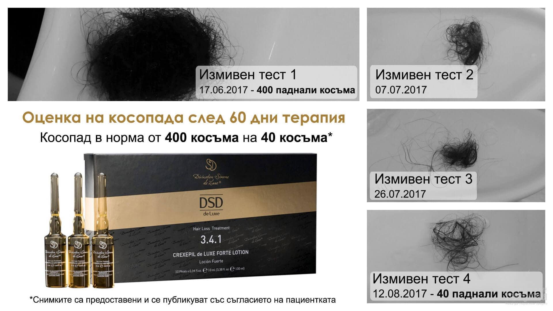 Успешни случаи: Лечение на Косопад с Линия 3 DSD De Luxe